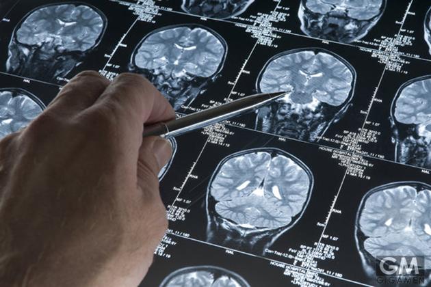 gigamen_Alzheimer_treatment_ultrasound