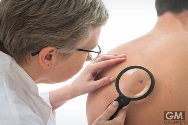 gigamen_vulnerable_body_part_skin_cancer01