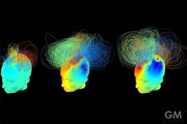 brain-signatures