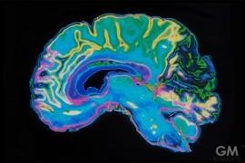 how-meditation-will-improve-brain